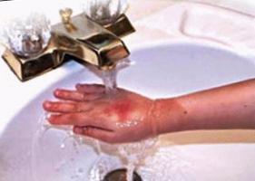 Ожог водой что делать в домашних условиях